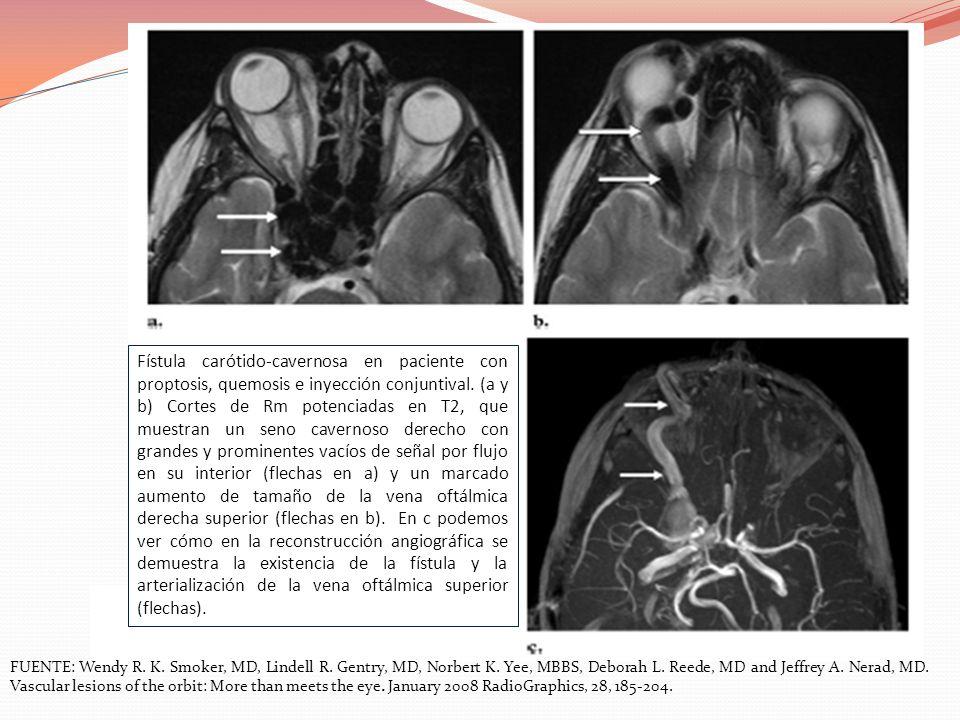 Fístula carótido-cavernosa en paciente con proptosis, quemosis e inyección conjuntival. (a y b) Cortes de Rm potenciadas en T2, que muestran un seno c