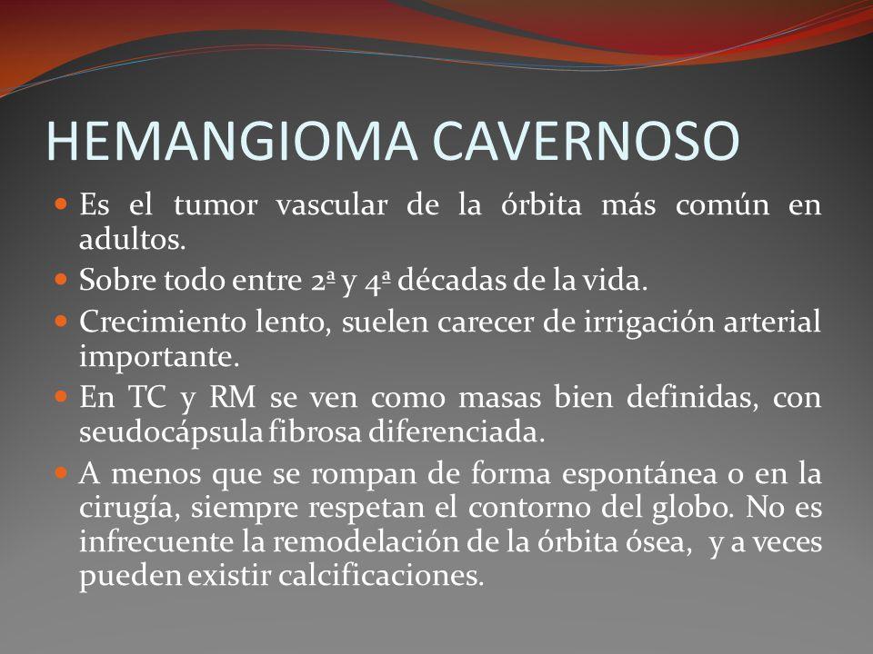 HEMANGIOMA CAVERNOSO Es el tumor vascular de la órbita más común en adultos. Sobre todo entre 2ª y 4ª décadas de la vida. Crecimiento lento, suelen ca