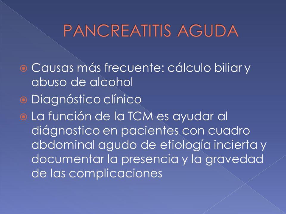 Causas más frecuente: cálculo biliar y abuso de alcohol Diagnóstico clínico La función de la TCM es ayudar al diágnostico en pacientes con cuadro abdo