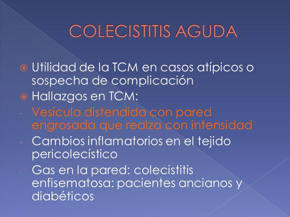 Utilidad de la TCM en casos atípicos o sospecha de complicación Hallazgos en TCM: - Vesícula distendida con pared engrosada que realza con intensidad