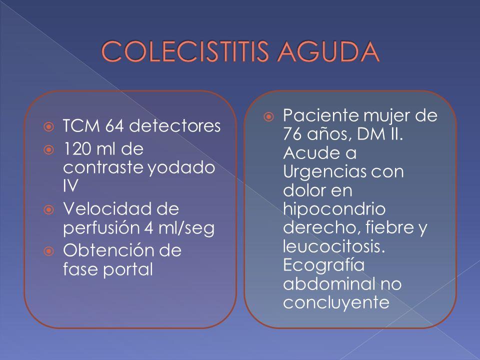 TCM 64 detectores 120 ml de contraste yodado IV Velocidad de perfusión 4 ml/seg Obtención de fase portal Paciente mujer de 76 años, DM II. Acude a Urg
