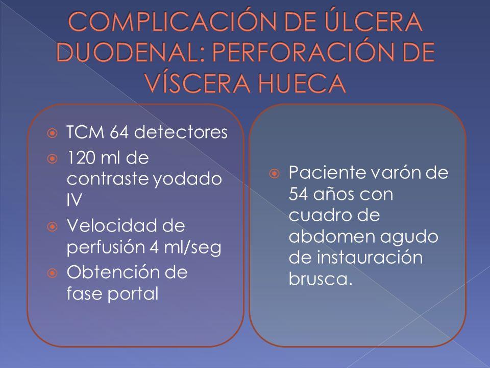Paciente varón de 54 años con cuadro de abdomen agudo de instauración brusca. TCM 64 detectores 120 ml de contraste yodado IV Velocidad de perfusión 4