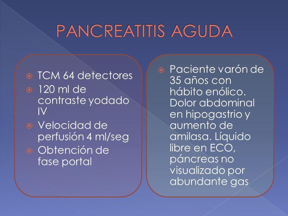 TCM 64 detectores 120 ml de contraste yodado IV Velocidad de perfusión 4 ml/seg Obtención de fase portal Paciente varón de 35 años con hábito enólico.
