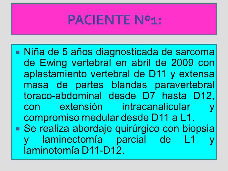 PACIENTE Nº1: Niña de 5 años diagnosticada de sarcoma de Ewing vertebral en abril de 2009 con aplastamiento vertebral de D11 y extensa masa de partes blandas paravertebral toraco-abdominal desde D7 hasta D12, con extensión intracanalicular y compromiso medular desde D11 a L1.
