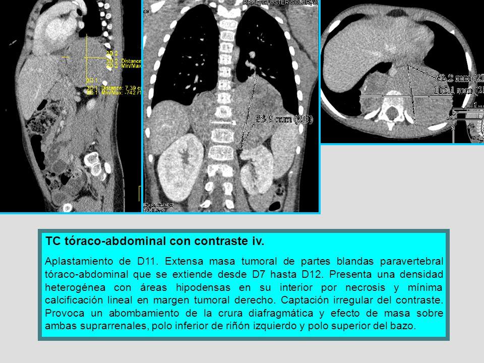 TC tóraco-abdominal con contraste iv. Aplastamiento de D11. Extensa masa tumoral de partes blandas paravertebral tóraco-abdominal que se extiende desd