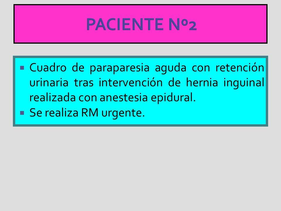 PACIENTE Nº2 Cuadro de paraparesia aguda con retención urinaria tras intervención de hernia inguinal realizada con anestesia epidural. Se realiza RM u