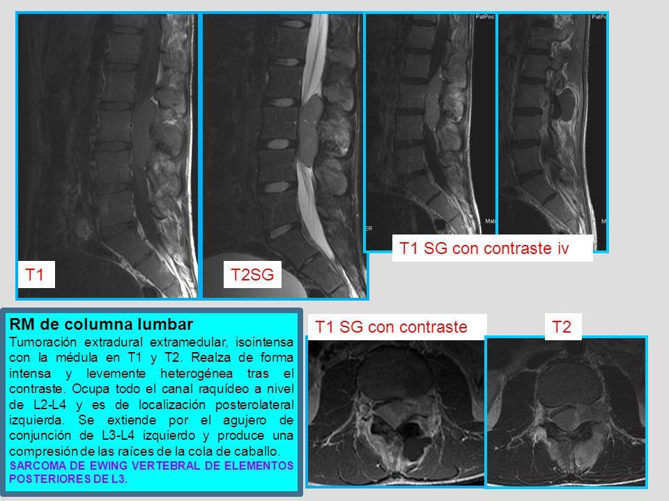 RM de columna lumbar Tumoración extradural extramedular, isointensa con la médula en T1 y T2. Realza de forma intensa y levemente heterogénea tras el