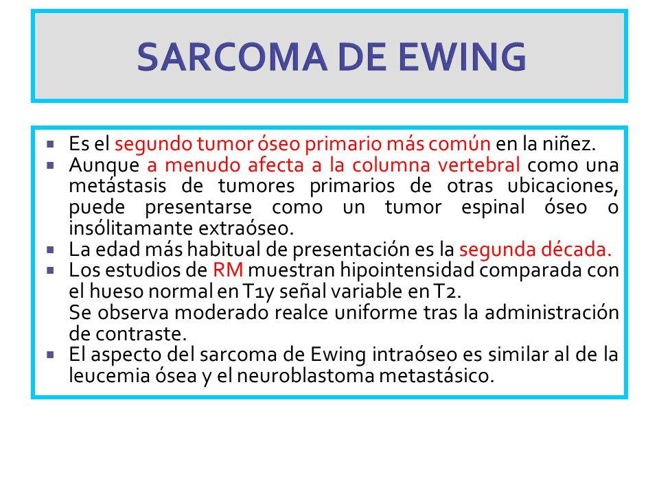 SARCOMA DE EWING Es el segundo tumor óseo primario más común en la niñez. Aunque a menudo afecta a la columna vertebral como una metástasis de tumores