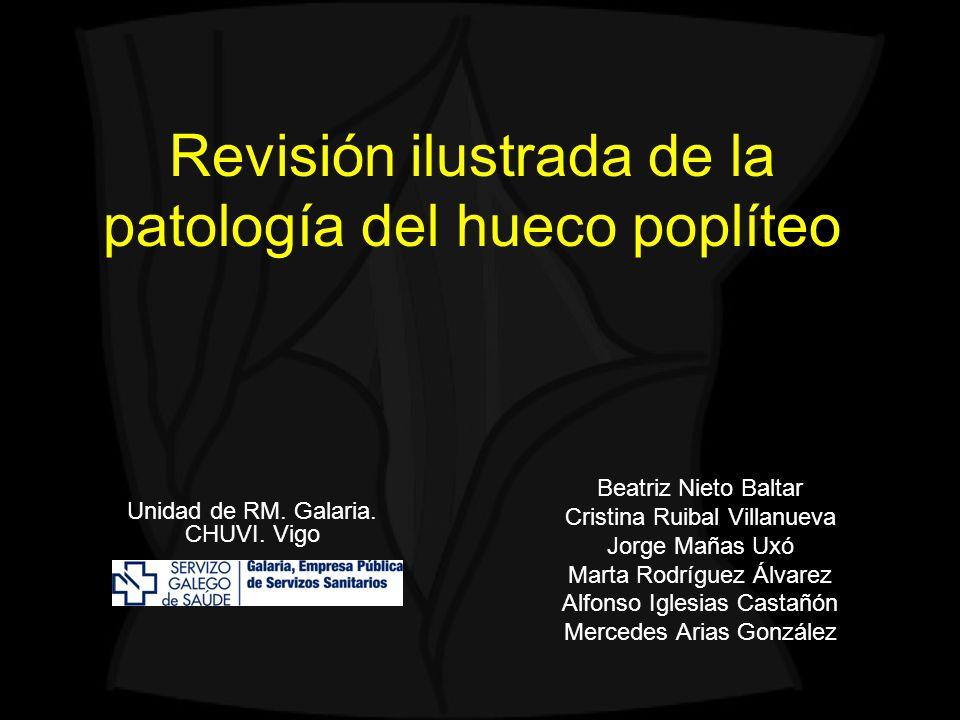 Revisión ilustrada de la patología del hueco poplíteo Beatriz Nieto Baltar Cristina Ruibal Villanueva Jorge Mañas Uxó Marta Rodríguez Álvarez Alfonso