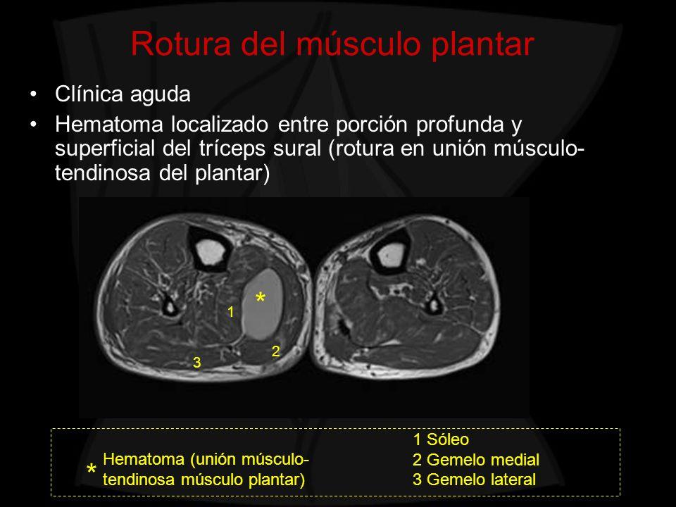 Rotura del músculo plantar * Hematoma (unión músculo- tendinosa músculo plantar) 1 Sóleo 2 Gemelo medial 3 Gemelo lateral * Clínica aguda Hematoma loc