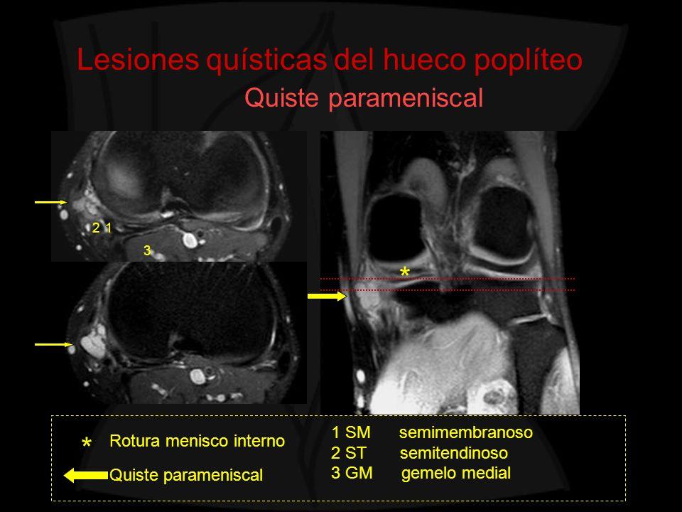Lesiones quísticas del hueco poplíteo Quiste parameniscal Rotura menisco interno Quiste parameniscal * * 1 SM semimembranoso 2 ST semitendinoso 3 GM g