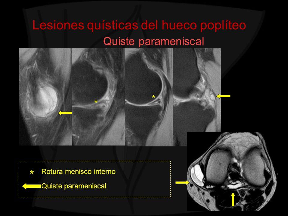 Lesiones quísticas del hueco poplíteo Quiste parameniscal Rotura menisco interno Quiste parameniscal * * *