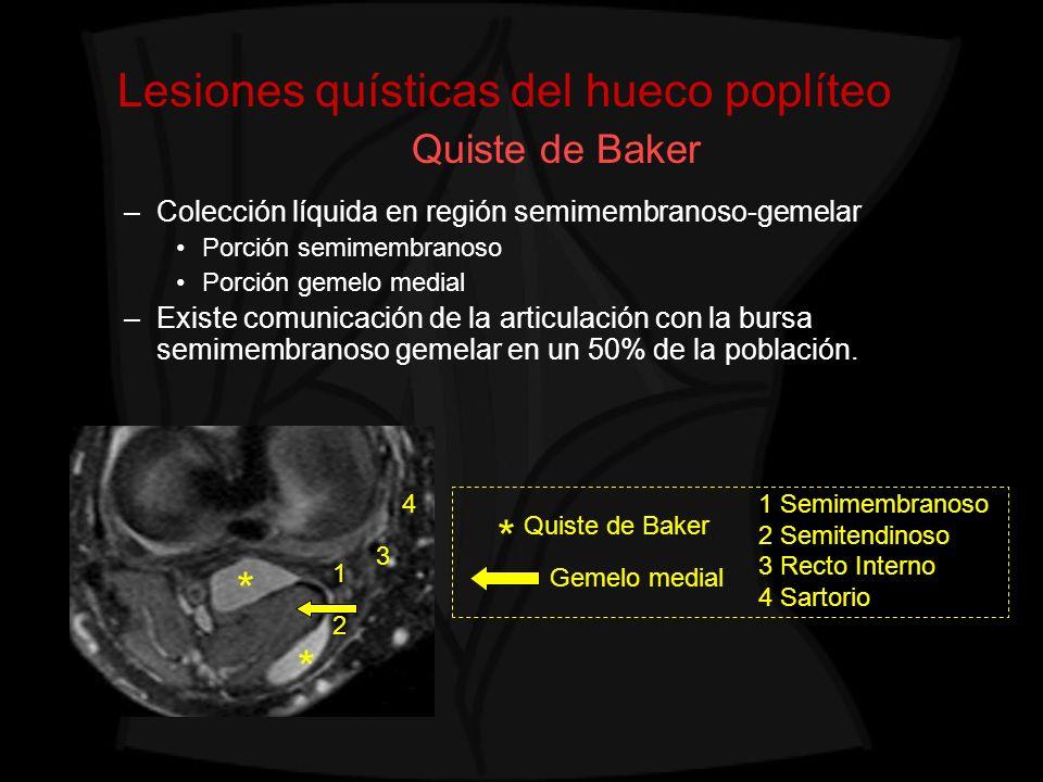 Lesiones quísticas del hueco poplíteo Quiste de Baker –Colección líquida en región semimembranoso-gemelar Porción semimembranoso Porción gemelo medial