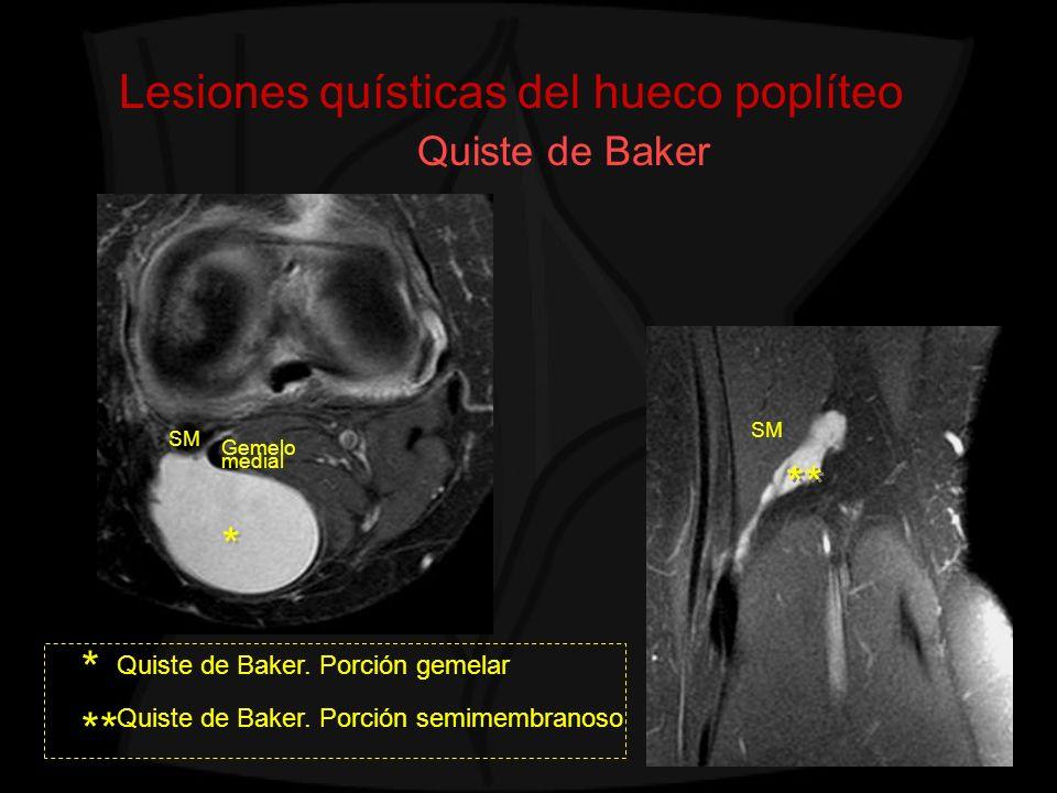 Lesiones quísticas del hueco poplíteo Quiste de Baker Quiste de Baker. Porción semimembranoso Quiste de Baker. Porción gemelar * SM Gemelo medial ** *