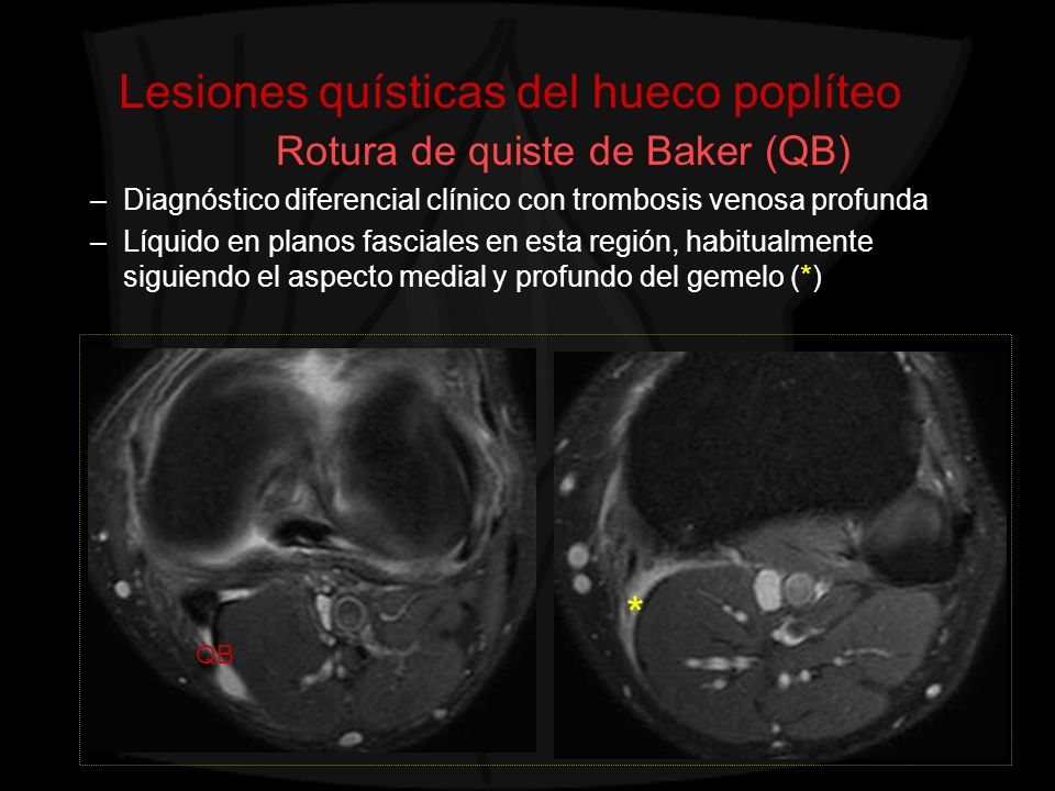 Lesiones quísticas del hueco poplíteo Rotura de quiste de Baker (QB) –Diagnóstico diferencial clínico con trombosis venosa profunda –Líquido en planos