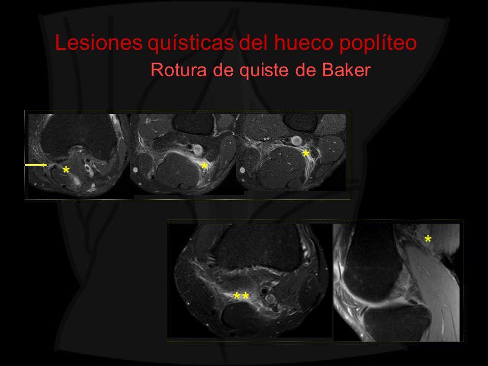 Lesiones quísticas del hueco poplíteo Rotura de quiste de Baker * * ** * *