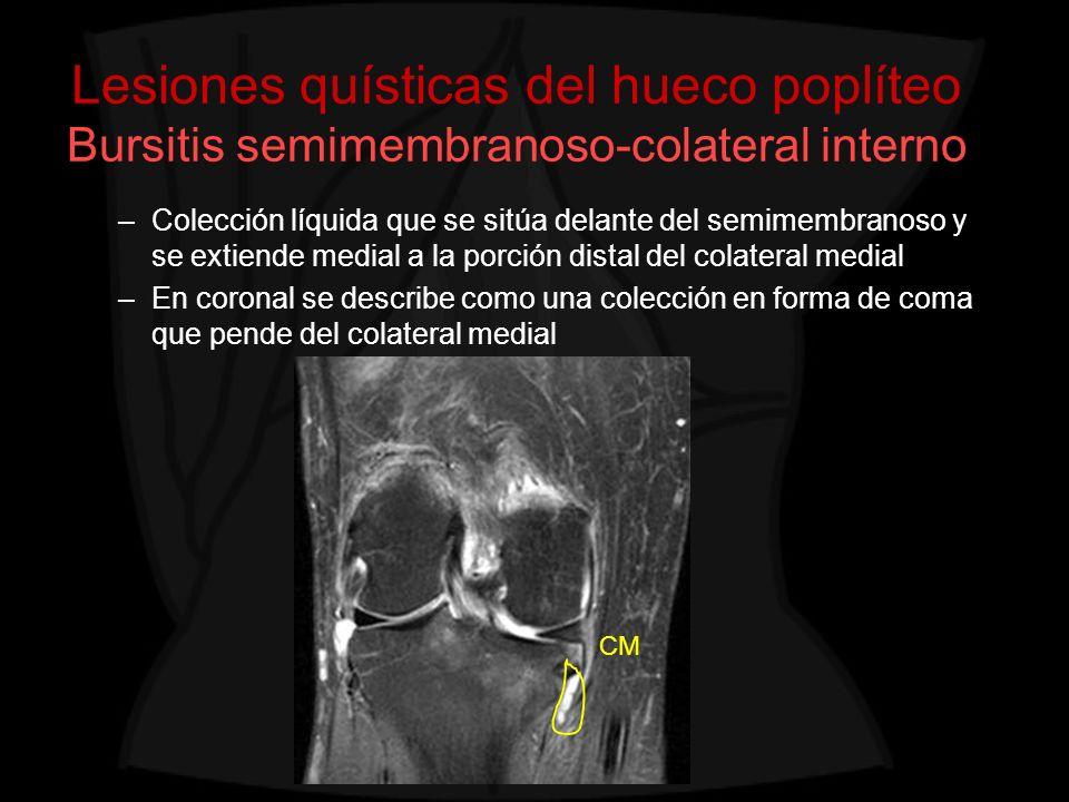 Lesiones quísticas del hueco poplíteo Bursitis semimembranoso-colateral interno –Colección líquida que se sitúa delante del semimembranoso y se extien