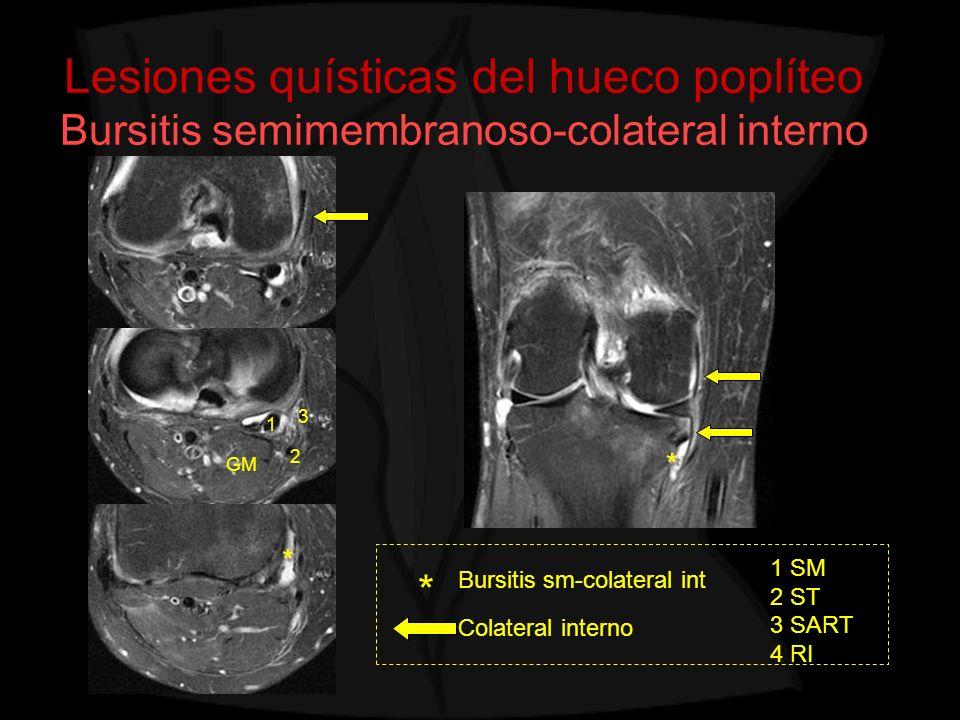 Lesiones quísticas del hueco poplíteo Bursitis semimembranoso-colateral interno Bursitis sm-colateral int Colateral interno * 1 SM 2 ST 3 SART 4 RI 1
