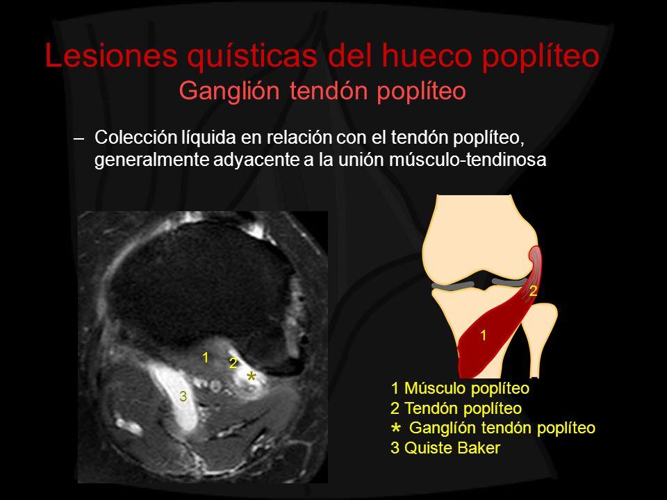 Lesiones quísticas del hueco poplíteo Ganglión tendón poplíteo –Colección líquida en relación con el tendón poplíteo, generalmente adyacente a la unió