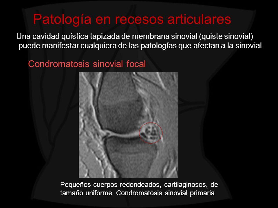 Patología en recesos articulares Pequeños cuerpos redondeados, cartilaginosos, de tamaño uniforme. Condromatosis sinovial primaria Condromatosis sinov