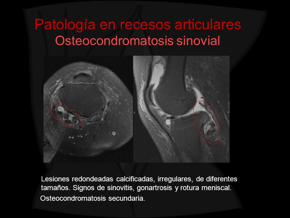 Patología en recesos articulares Osteocondromatosis sinovial Lesiones redondeadas calcificadas, irregulares, de diferentes tamaños. Signos de sinoviti