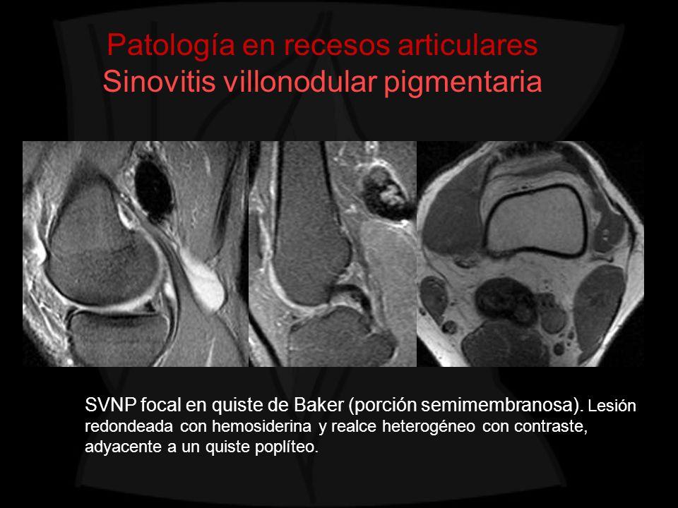 Patología en recesos articulares Sinovitis villonodular pigmentaria SVNP focal en quiste de Baker (porción semimembranosa). Lesión redondeada con hemo