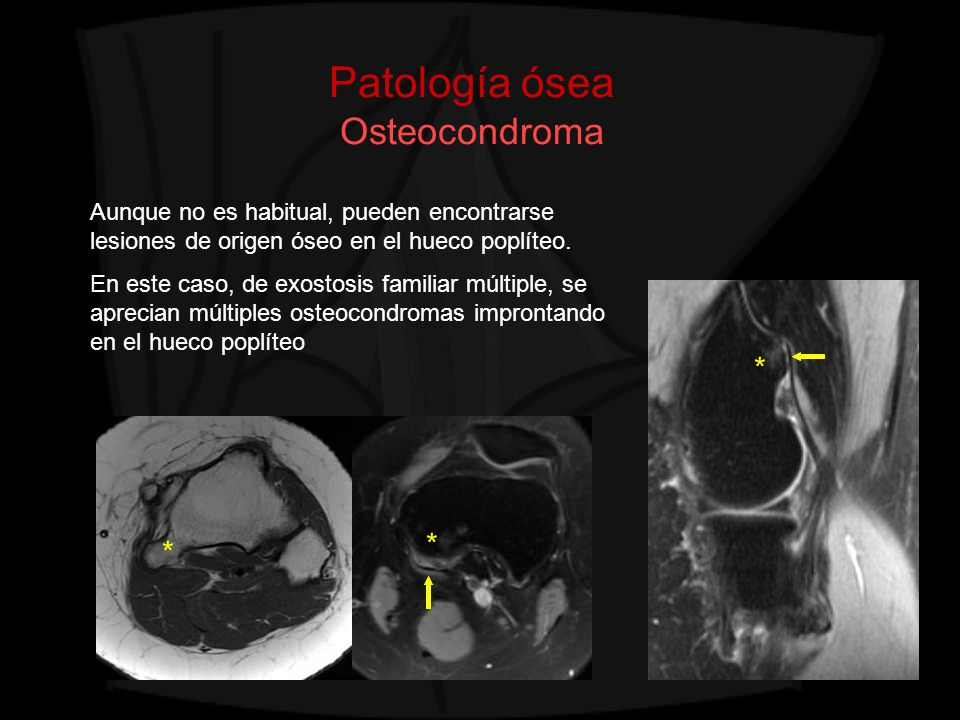 Patología ósea Osteocondroma Aunque no es habitual, pueden encontrarse lesiones de origen óseo en el hueco poplíteo. En este caso, de exostosis famili
