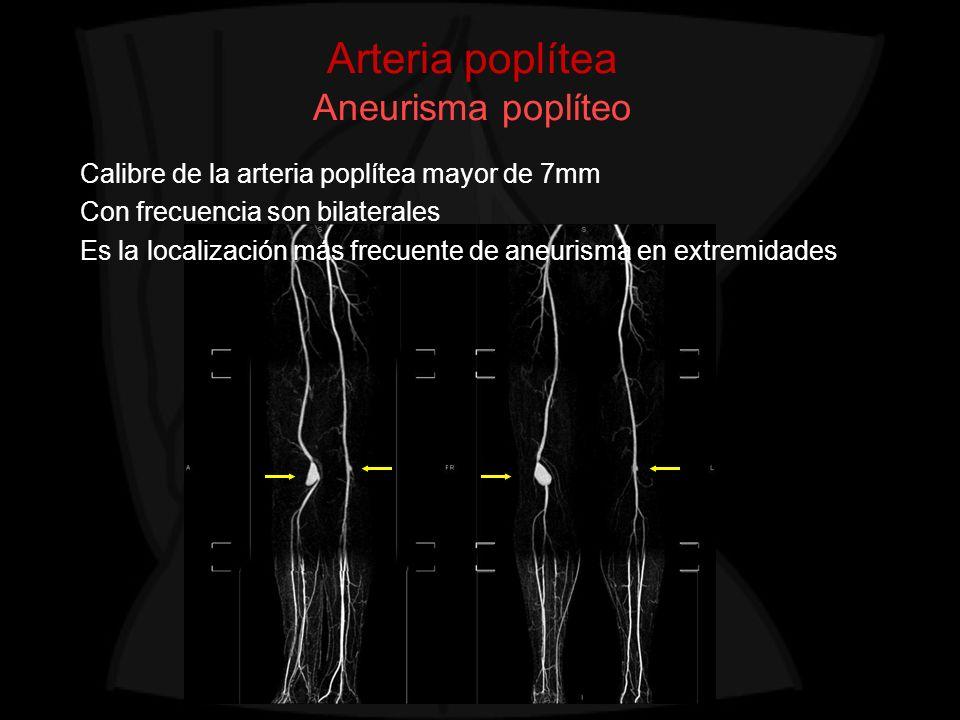 Arteria poplítea Aneurisma poplíteo Calibre de la arteria poplítea mayor de 7mm Con frecuencia son bilaterales Es la localización más frecuente de ane