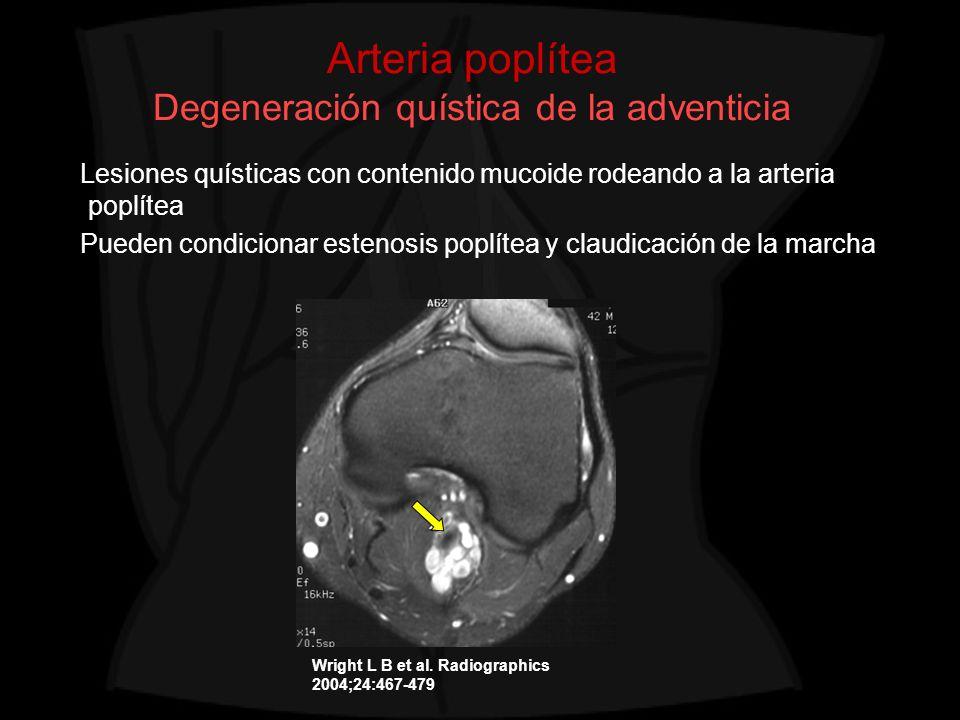 Arteria poplítea Degeneración quística de la adventicia Lesiones quísticas con contenido mucoide rodeando a la arteria poplítea Pueden condicionar est