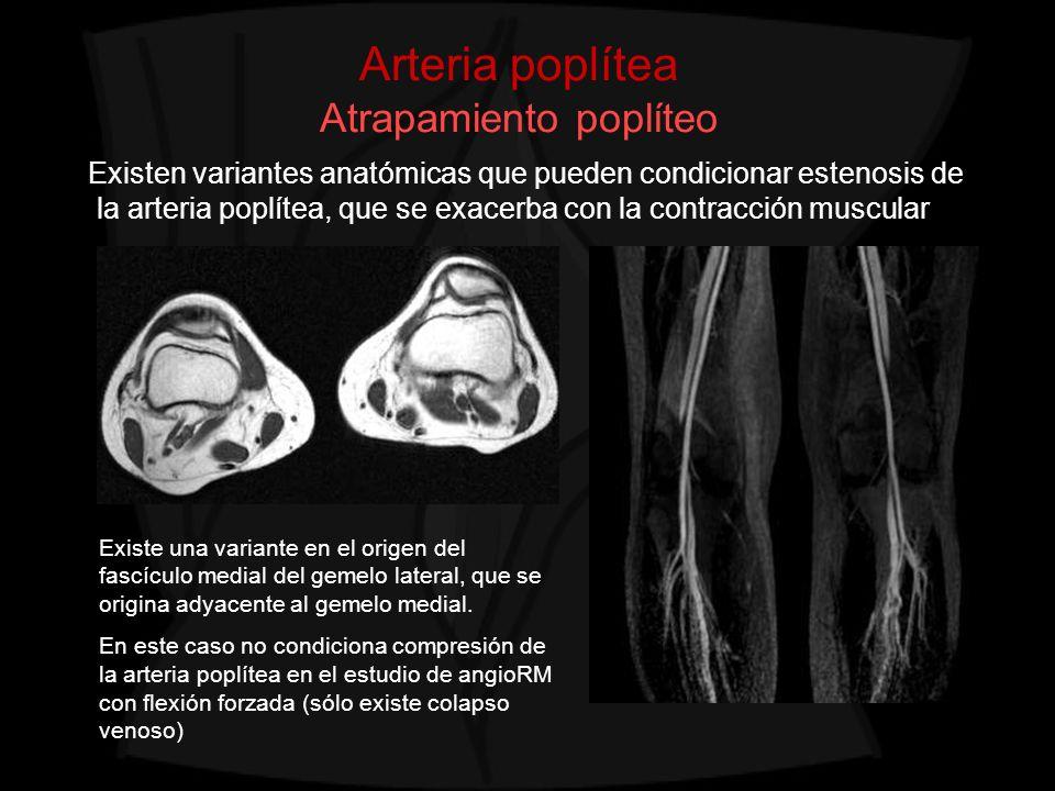 Arteria poplítea Atrapamiento poplíteo Existen variantes anatómicas que pueden condicionar estenosis de la arteria poplítea, que se exacerba con la co
