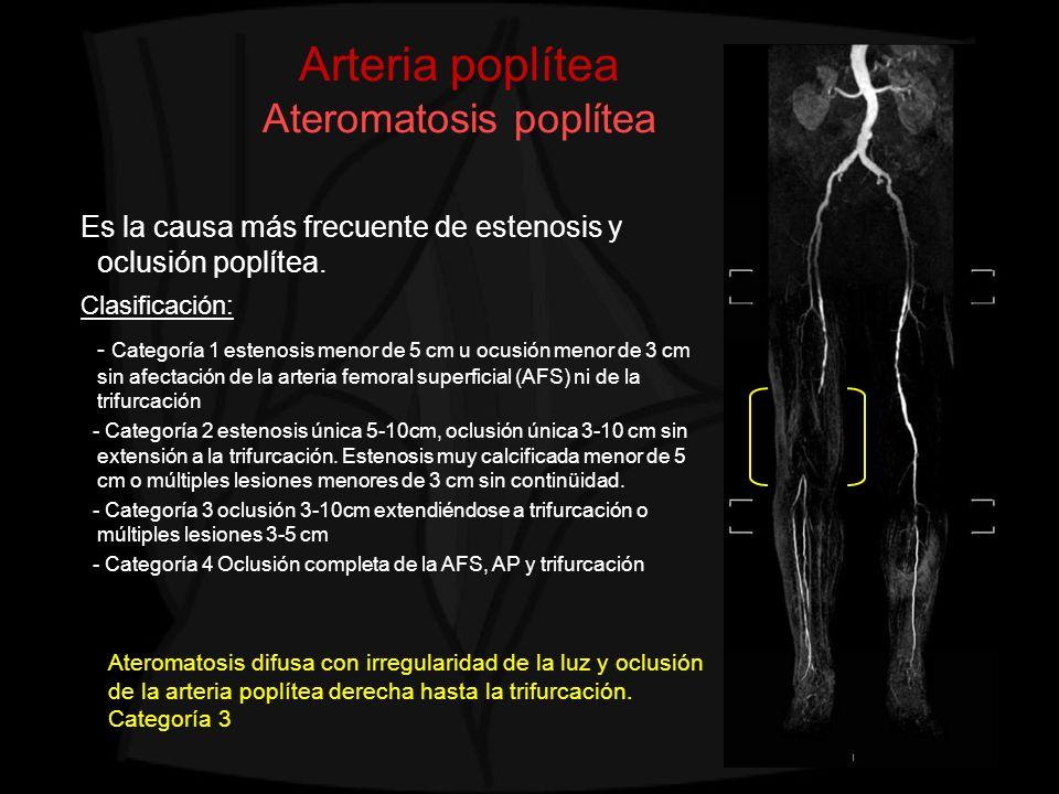 Arteria poplítea Ateromatosis poplítea Es la causa más frecuente de estenosis y oclusión poplítea. Clasificación: - Categoría 1 estenosis menor de 5 c