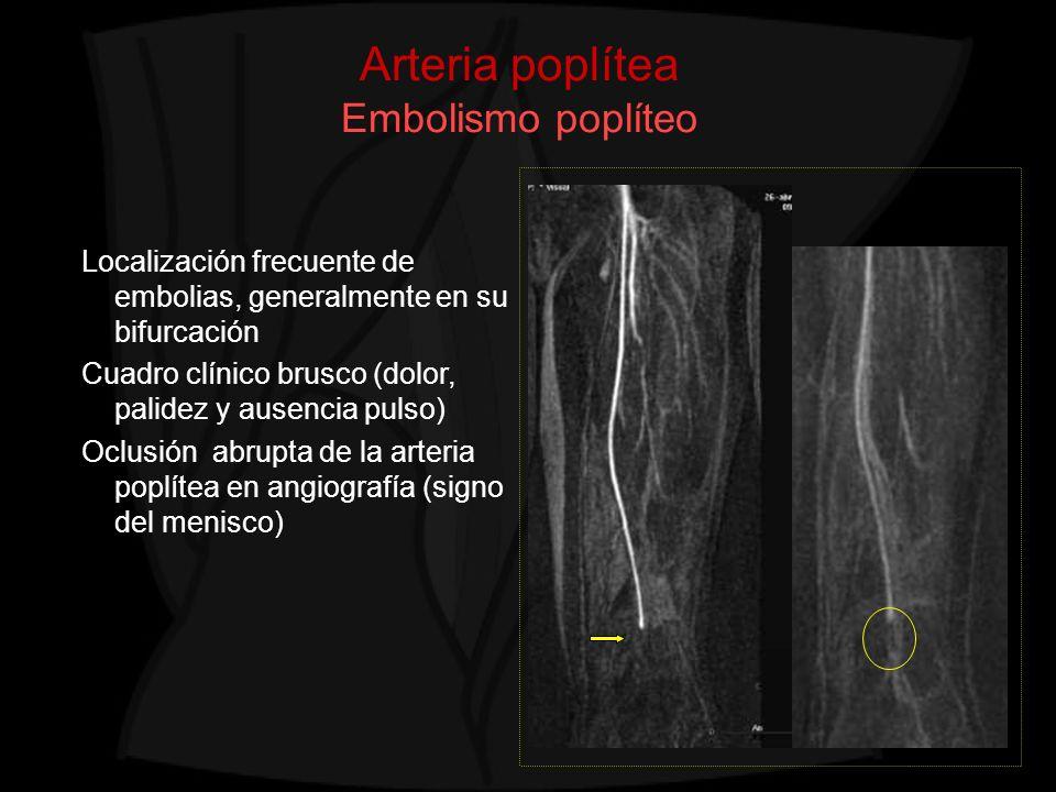 Arteria poplítea Embolismo poplíteo Localización frecuente de embolias, generalmente en su bifurcación Cuadro clínico brusco (dolor, palidez y ausenci
