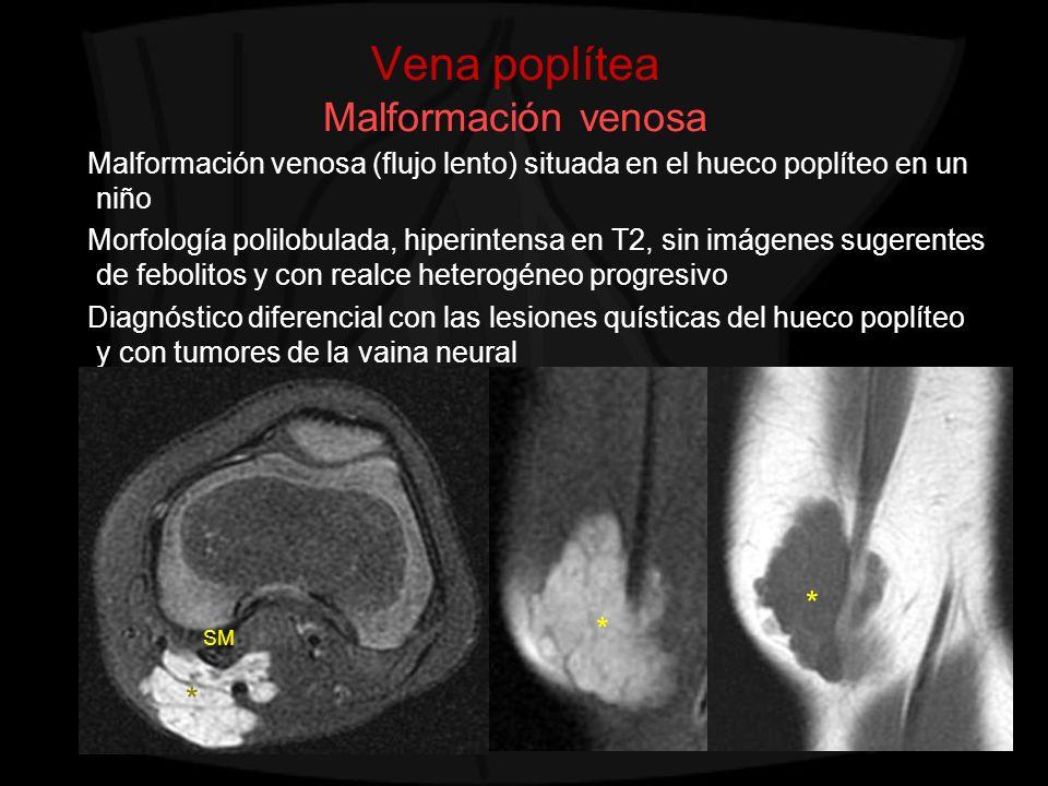 Vena poplítea Malformación venosa Malformación venosa (flujo lento) situada en el hueco poplíteo en un niño Morfología polilobulada, hiperintensa en T