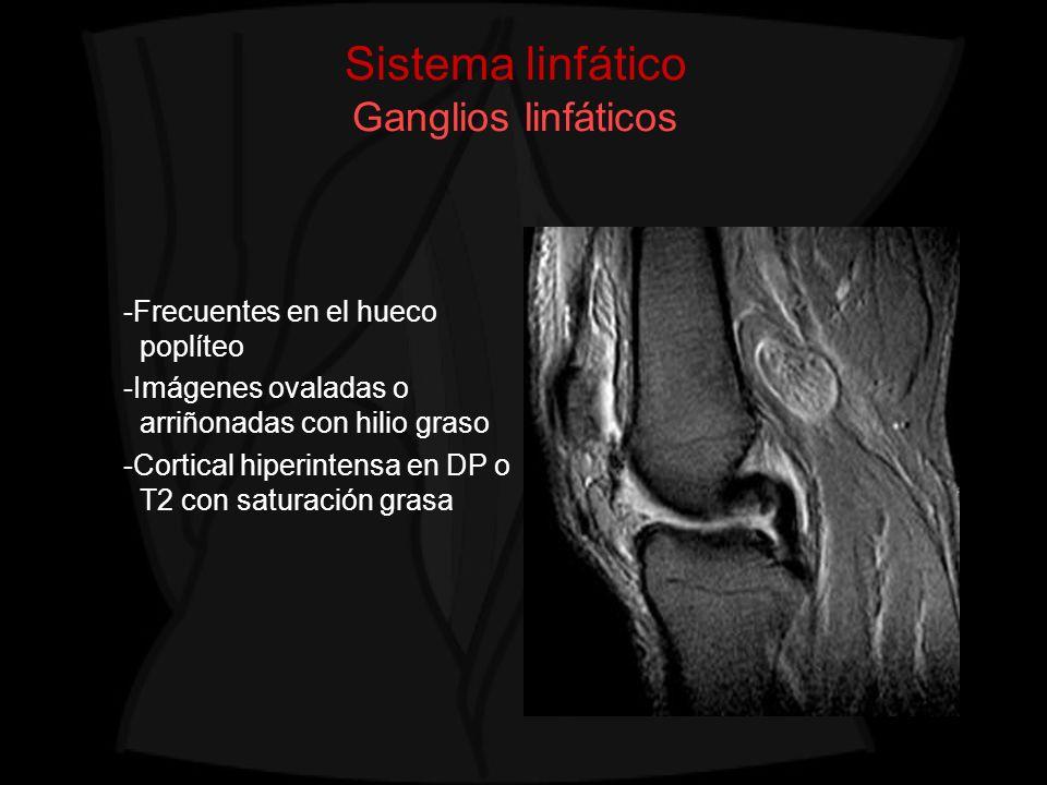 Sistema linfático Ganglios linfáticos -Frecuentes en el hueco poplíteo -Imágenes ovaladas o arriñonadas con hilio graso -Cortical hiperintensa en DP o