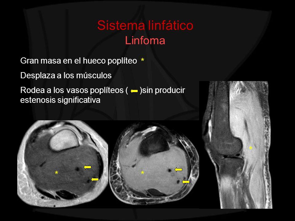Sistema linfático Linfoma Gran masa en el hueco poplíteo Desplaza a los músculos Rodea a los vasos poplíteos ( )sin producir estenosis significativa *