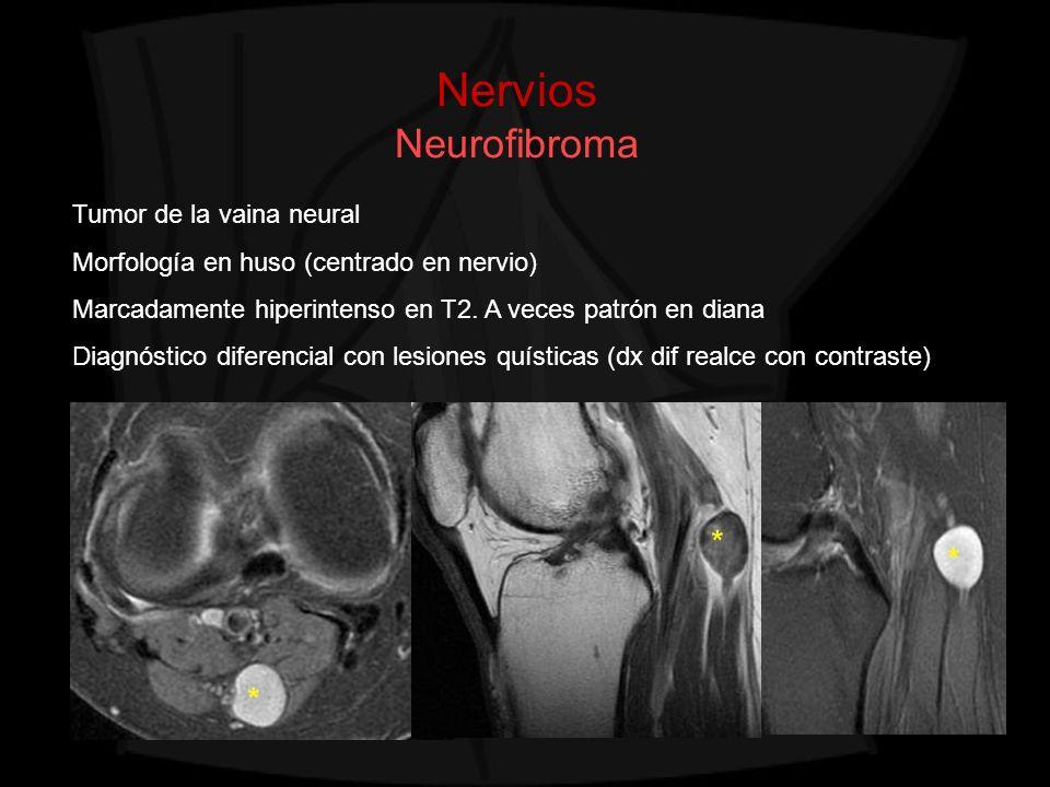 Nervios Neurofibroma Tumor de la vaina neural Morfología en huso (centrado en nervio) Marcadamente hiperintenso en T2. A veces patrón en diana Diagnós