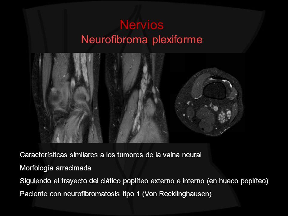 Nervios Neurofibroma plexiforme Características similares a los tumores de la vaina neural Morfología arracimada Siguiendo el trayecto del ciático pop