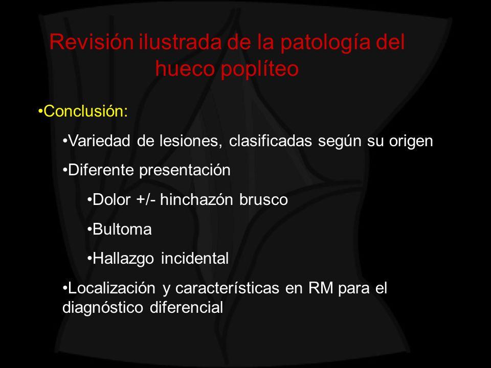 Revisión ilustrada de la patología del hueco poplíteo Conclusión: Variedad de lesiones, clasificadas según su origen Diferente presentación Dolor +/-