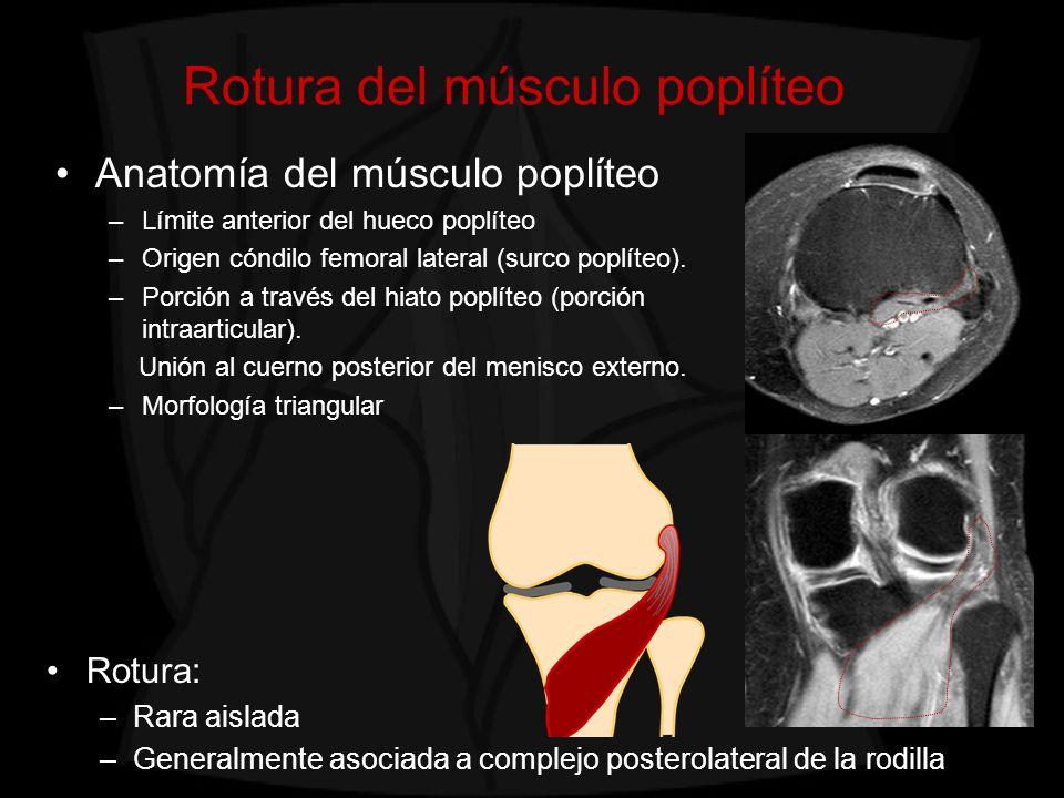 Rotura del músculo poplíteo Hallazgos en imagen: –Alteración de señal del músculo poplíteo y engrosamiento y alteración de señal del tendón (con o sin rotura completa) * Músculo poplíteo Tendón poplíteo *