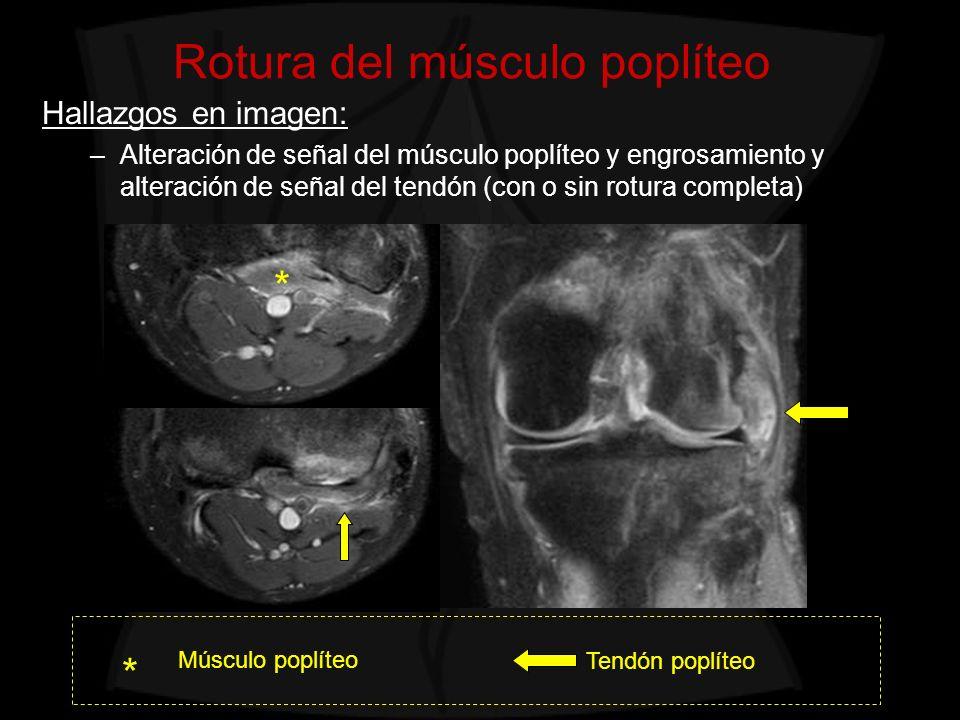 Rotura del músculo poplíteo Hallazgos en imagen: –Alteración de señal del músculo poplíteo y engrosamiento y alteración de señal del tendón (con o sin