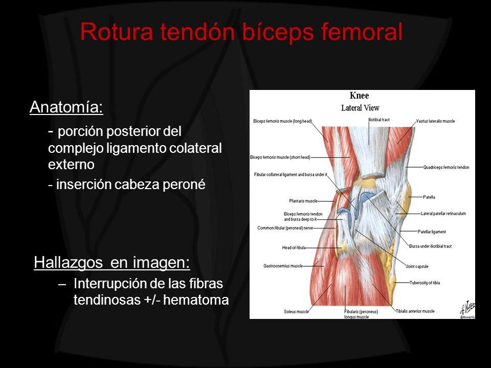 Rotura tendón bíceps femoral Hallazgos en imagen: –Interrupción de las fibras tendinosas +/- hematoma Anatomía: - porción posterior del complejo ligam