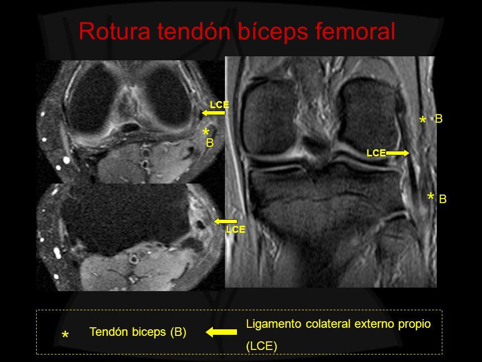 Lesiones quísticas del hueco poplíteo Bursitis semimembranoso-colateral interno Bursitis sm-colateral int Colateral interno * 1 SM 2 ST 3 SART 4 RI 1 2 3 GM ** **