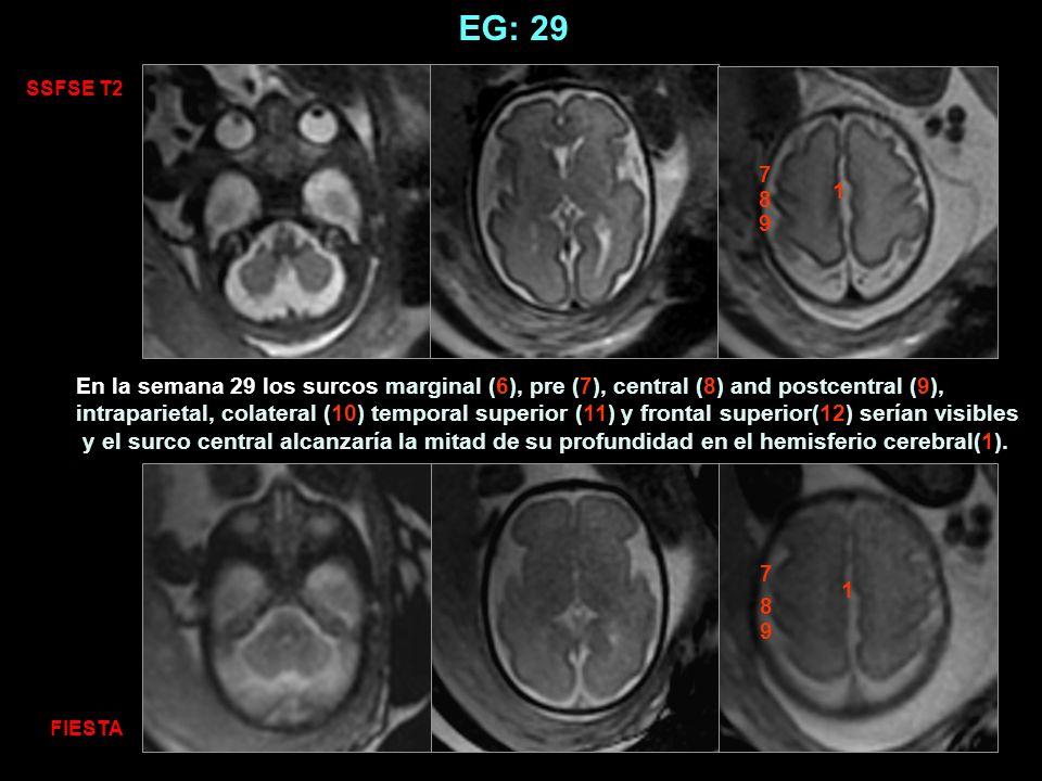 EG: 29 SSFSE T2 FIESTA 1 1 7 8 7 8 9 9 En la semana 29 los surcos marginal (6), pre (7), central (8) and postcentral (9), intraparietal, colateral (10