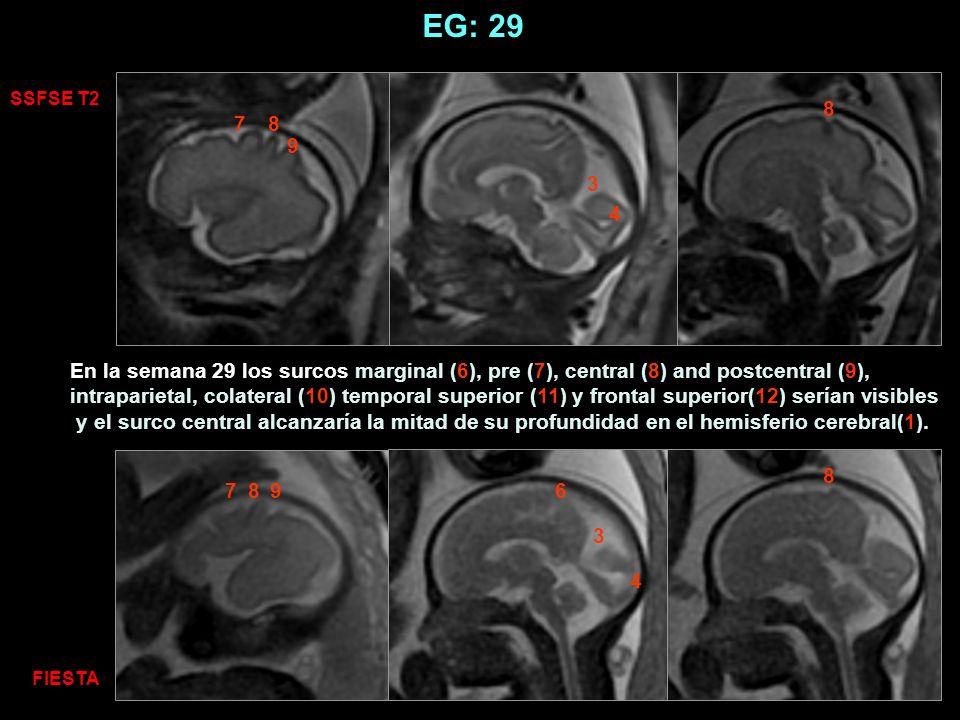 SSFSE T2 FIESTA 87 687 9 8 9 3 4 8 3 4 EG: 29 En la semana 29 los surcos marginal (6), pre (7), central (8) and postcentral (9), intraparietal, colate