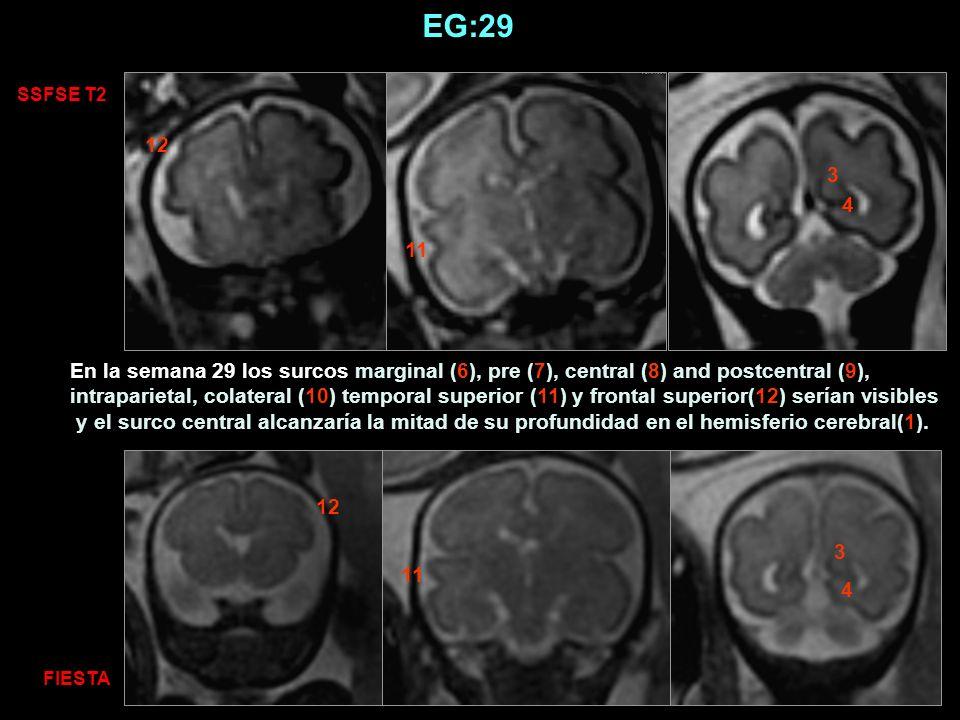 SSFSE T2 FIESTA 11 12 3 4 4 3 EG:29 En la semana 29 los surcos marginal (6), pre (7), central (8) and postcentral (9), intraparietal, colateral (10) t