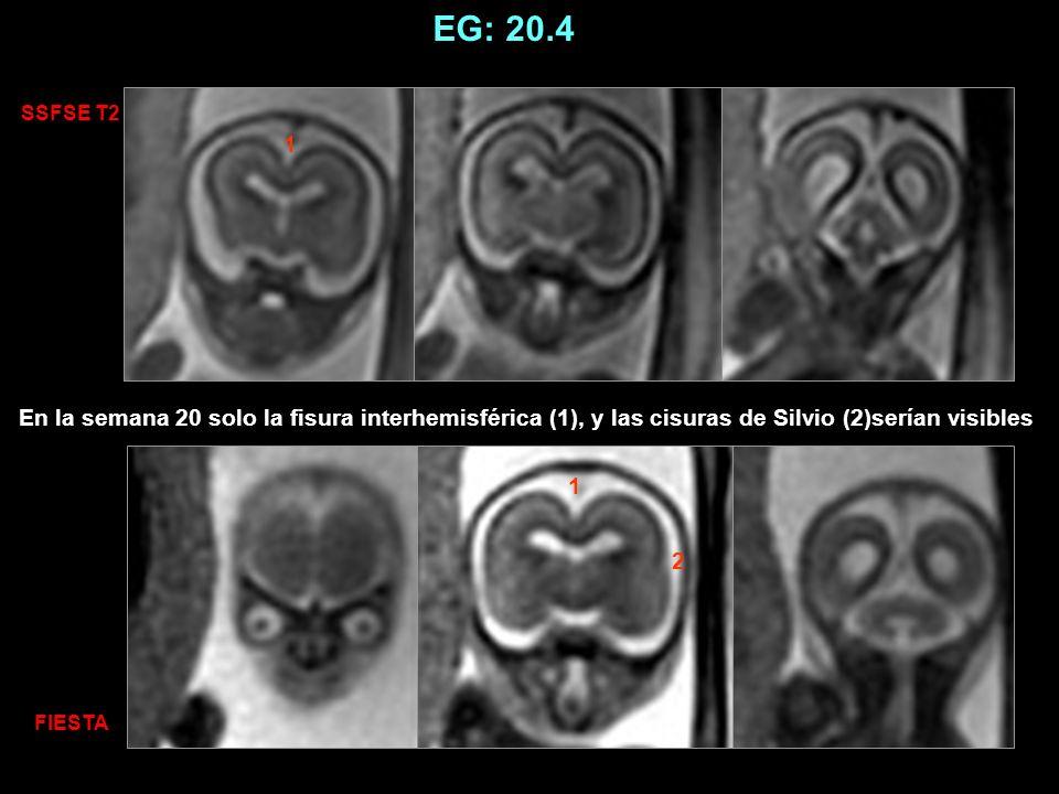 EG: 25 1 2 1 2 SSFSE T2 FIESTA En la semana 25, solo la fisura interhemisférica (1), cisuras de Silvio (2),surcos parietooccipitales (3), cisuras calcarinas (4), and fisuras hipocampales (5) serían visibles.