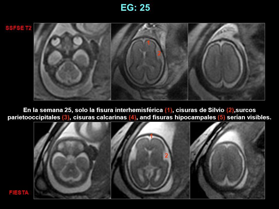 EG: 25 1 2 1 2 SSFSE T2 FIESTA En la semana 25, solo la fisura interhemisférica (1), cisuras de Silvio (2),surcos parietooccipitales (3), cisuras calc