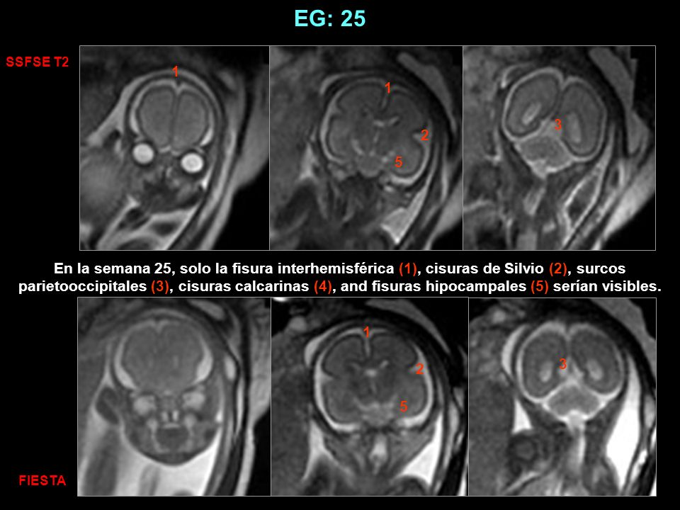 EG: 29 SSFSE T2 FIESTA 1 1 7 8 7 8 9 9 En la semana 29 los surcos marginal (6), pre (7), central (8) and postcentral (9), intraparietal, colateral (10) temporal superior (11) y frontal superior(12) serían visibles y el surco central alcanzaría la mitad de su profundidad en el hemisferio cerebral(1).