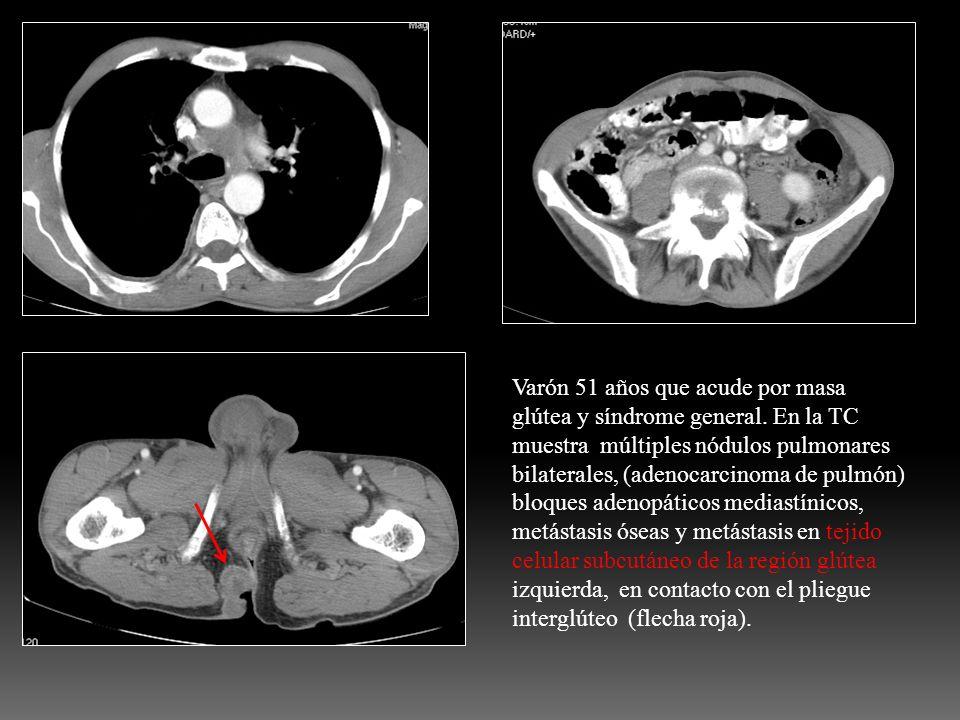 Varón 51 años que acude por masa glútea y síndrome general. En la TC muestra múltiples nódulos pulmonares bilaterales, (adenocarcinoma de pulmón) bloq