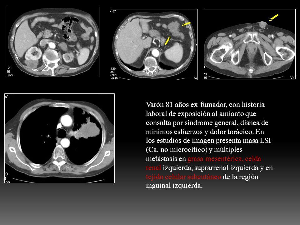 Varón 81 años ex-fumador, con historia laboral de exposición al amianto que consulta por síndrome general, disnea de mínimos esfuerzos y dolor torácic